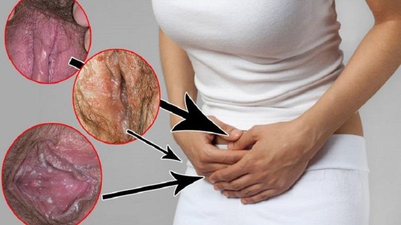بهبود عفونت های و زخم های مزمن