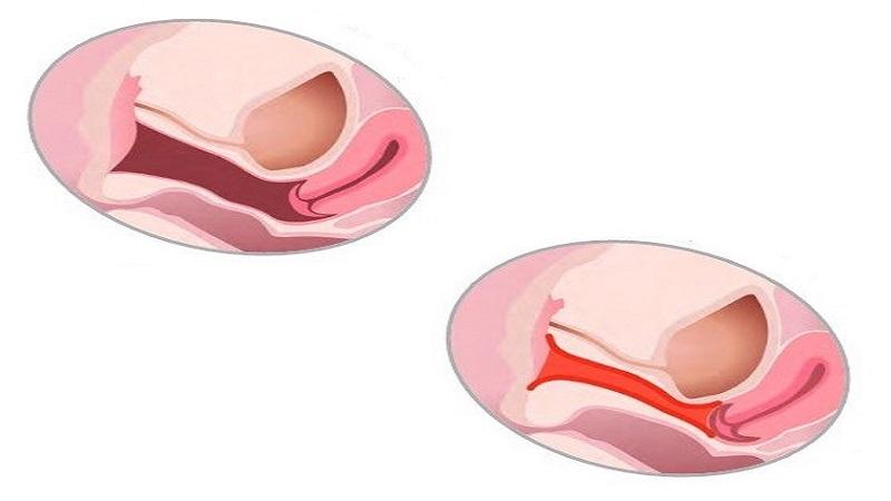 عمل تنگ کردن واژن